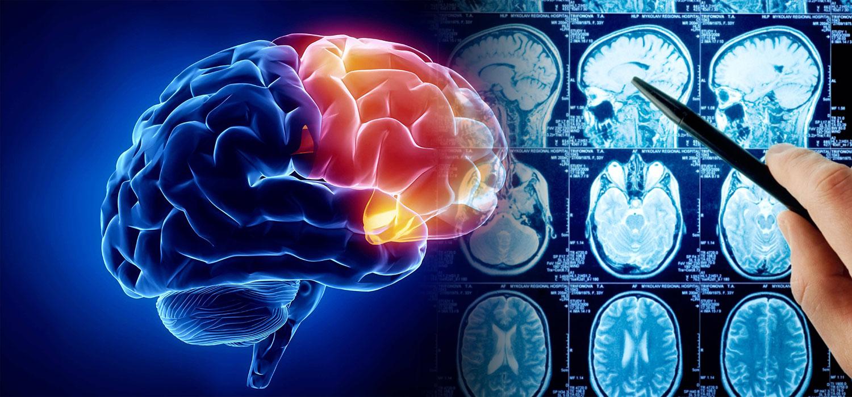 best neuro surgery hospital