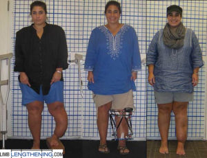 lengthening and deformity correction of leg