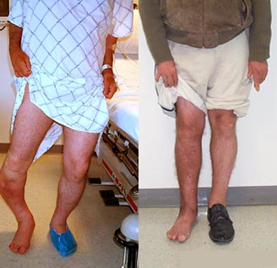 tsf treatment for tibial non union