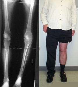 knee arthrodesis and lengthening