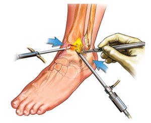 arthroscopic surgery key hole surgery