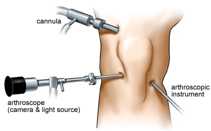 knee arthroscopy surgery in coimbatore