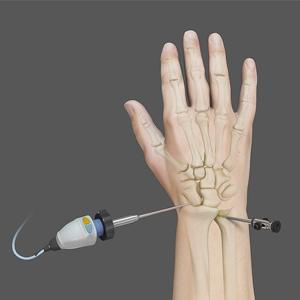 wrist arthroscopy surgery in coimbatore