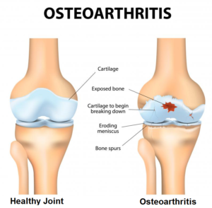 joint and osteoarthritis therapy in chennai