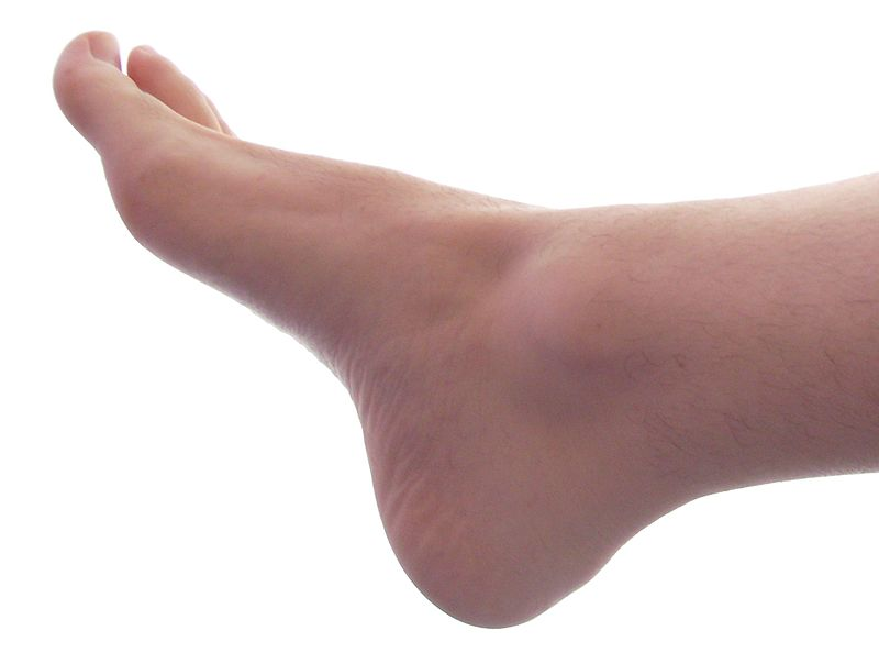What Causes Foot Pain?