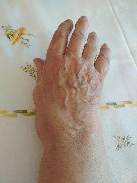Arthritis treatment in coimbatore