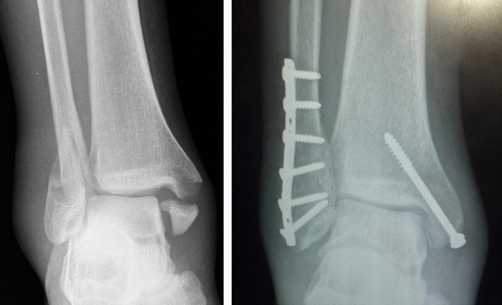 fracture treatment | orthopedic hospital |ortho hospital in coimbatore | best ortho hospital in coimbatore | best ortho doctor in coimbatore | ortho specialist in coimbatore | orthopedic hospital in coimbatore | hospitals in coimbatore
