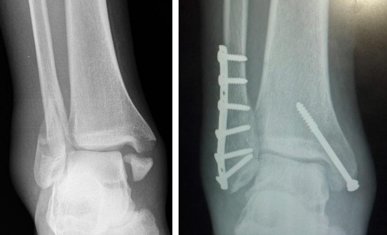 fracture treatment   orthopedic hospital  ortho hospital in coimbatore   best ortho hospital in coimbatore   best ortho doctor in coimbatore   ortho specialist in coimbatore   orthopedic hospital in coimbatore   hospitals in coimbatore