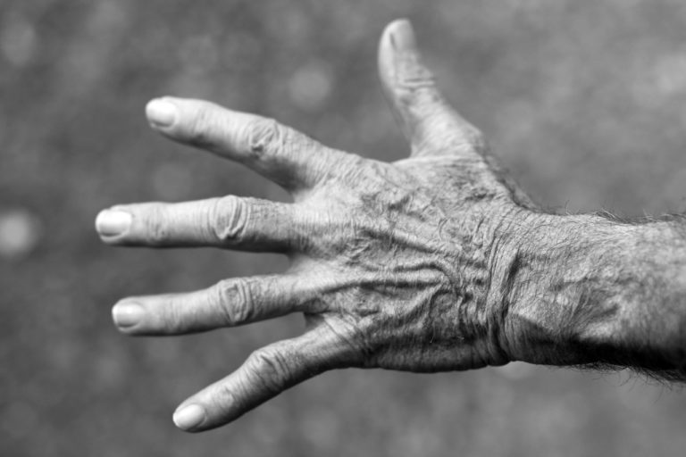 What are the first signs of Rheumatoid arthritis?