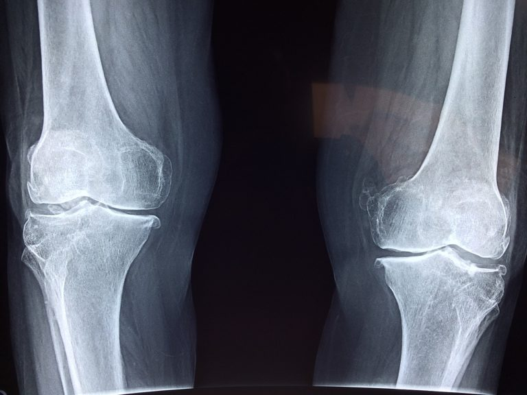 What are the most common knee injuries?