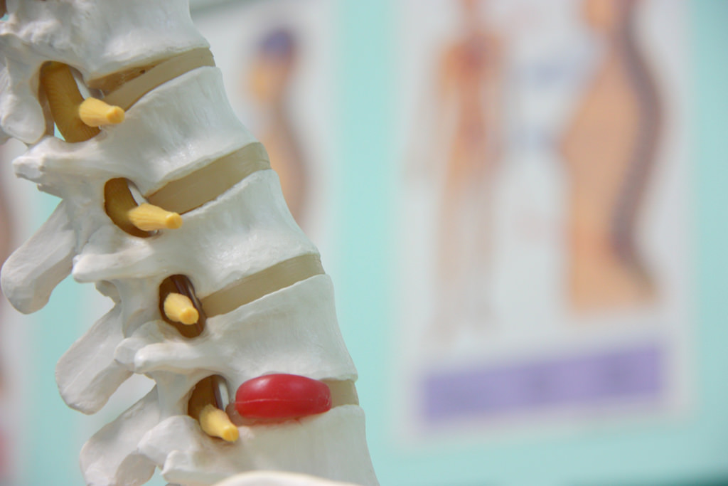 What is the best remedy for a slipped disc?